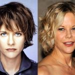 Meg Ryan before and after plastic surgery (22)