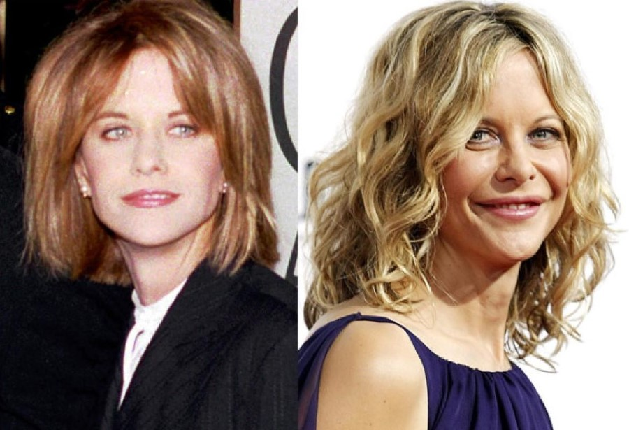 Meg Ryan Before And After Plastic Surgery 3 Celebrity Plastic