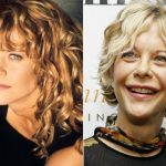 Meg Ryan before and after plastic surgery (9)