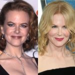 Nicole Kidman before and after plastic surgery (18)