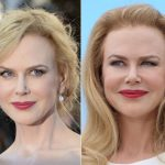 Nicole Kidman before and after plastic surgery (21)