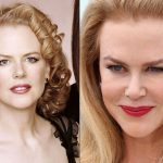 Nicole Kidman before and after plastic surgery (28)