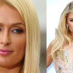 Paris Hilton before and after plastic surgery (13)
