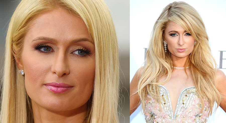 paris hilton before and after plastic surgery 13