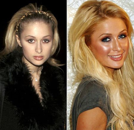 Paris Hilton before and after plastic surgery