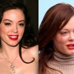 Rose McGowan before and after plastic surgery (1)