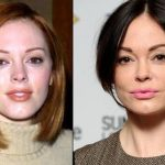 Rose McGowan before and after plastic surgery (10)