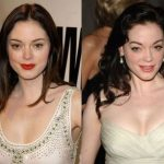 Rose McGowan before and after plastic surgery (11)