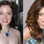 Rose McGowan before and after plastic surgery