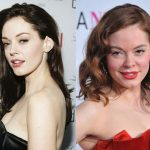 Rose McGowan before and after plastic surgery (38)