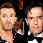 Rupert Everett before and after plastic surgery (10)