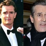 Rupert Everett before and after plastic surgery (11)