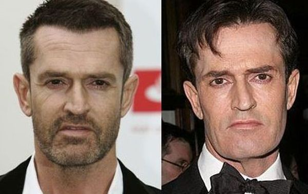 Rupert Everett before and after plastic surgery