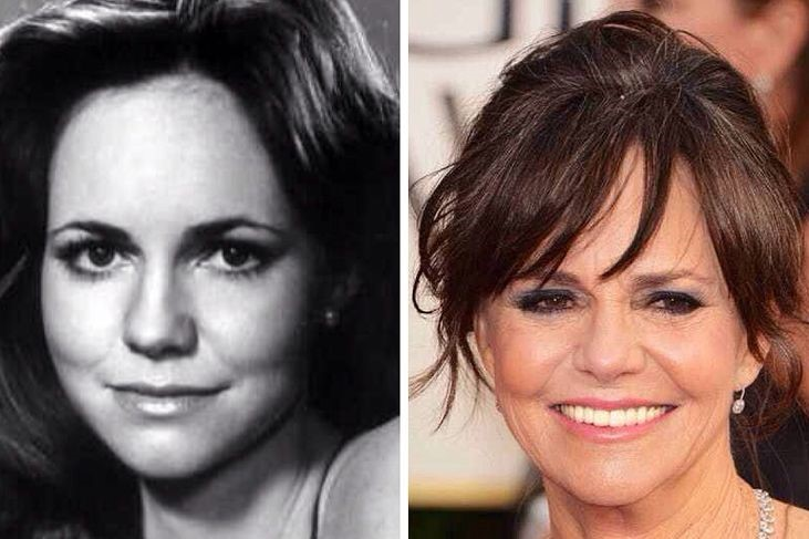 Sally Field before and after plastic surgery