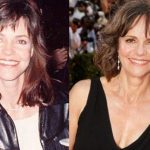 Sally Field before and after plastic surgery (6)