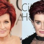 Sharon Osbourne before and after plastic surgery (1)