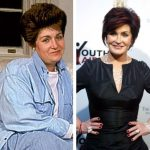 Sharon Osbourne before and after plastic surgery (2)