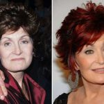 Sharon Osbourne before and after plastic surgery (22)