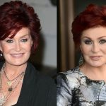 Sharon Osbourne before and after plastic surgery (23)