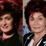 Sharon Osbourne before and after plastic surgery (44)