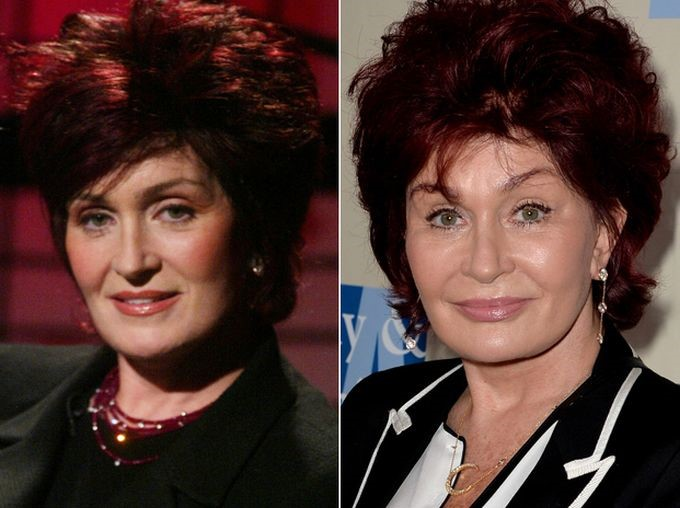 Sharon Osbourne Before And After Plastic Surgery 44