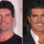 Simon Cowell before and after plastic surgery (26)