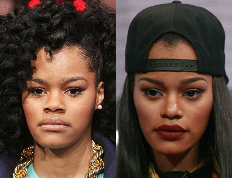 Teyana Taylor before and after plastic surgery