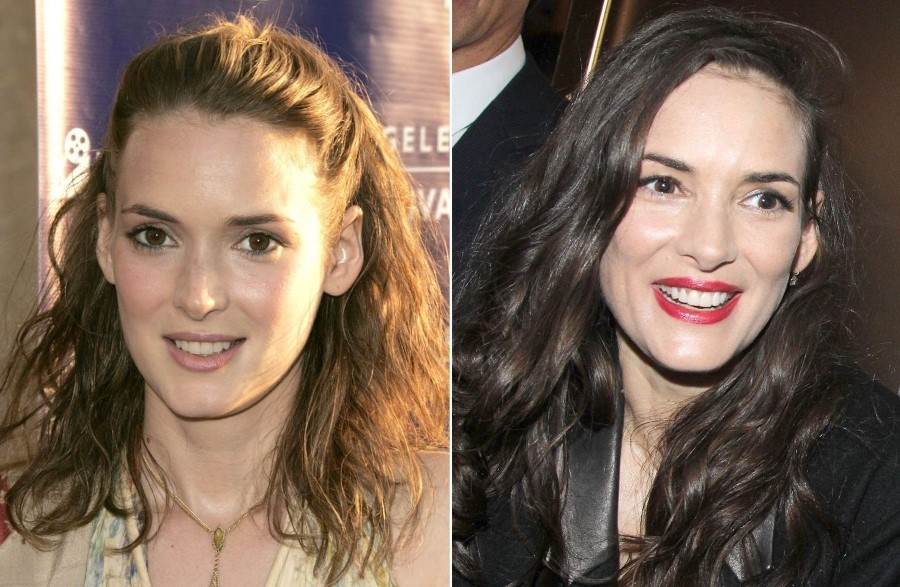 Winona Ryder before and after plastic surgery
