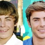 Zac Efron before and after plastic surgery (19)