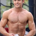Zac Efron plastic surgery (20)
