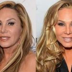 Adrienne Maloof before and afterplastic surgery (41)