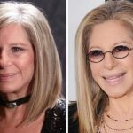 Barbra Streisand before and after plastic surgery (25)