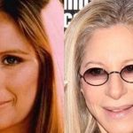 Barbra Streisand before and after plastic surgery (3)