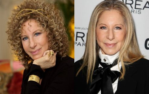 Barbra Streisand before and after plastic surgery