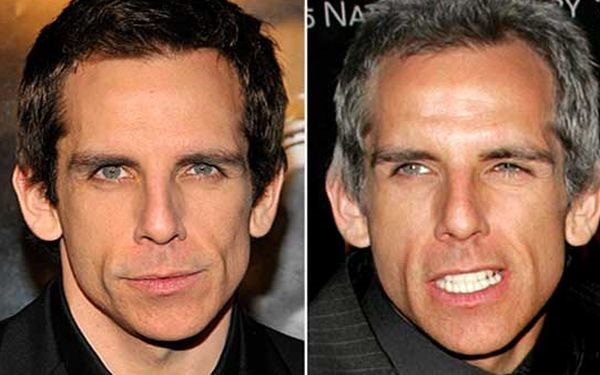 Ben Stiller before and after plastic surgery