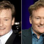 Conan O'Brien before and after plastic surgery (1)