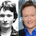 Conan O'Brien before and after plastic surgery (17)