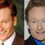 Conan O'Brien before and after plastic surgery (2)