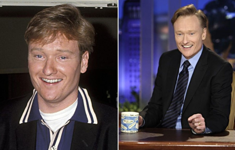 Conan O'Brien before and after plastic surgery
