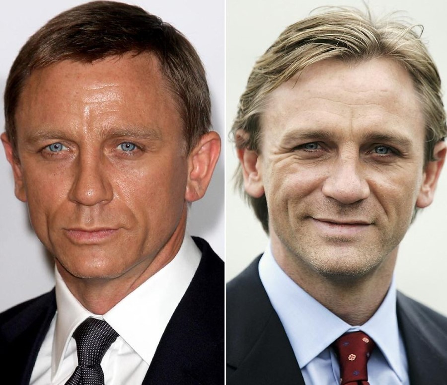 Daniel Craig before and after plastic surgery