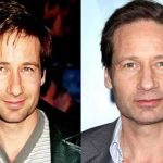 David Duchovny before and after plastic surgery (15)