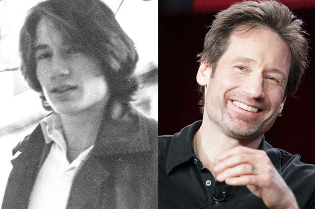 David Duchovny before and after plastic surgery