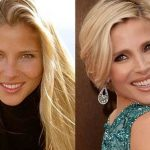 Elsa Pataky before and after plastic surgery (14)