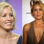 Felicity Huffman before and after plastic surgery (11)