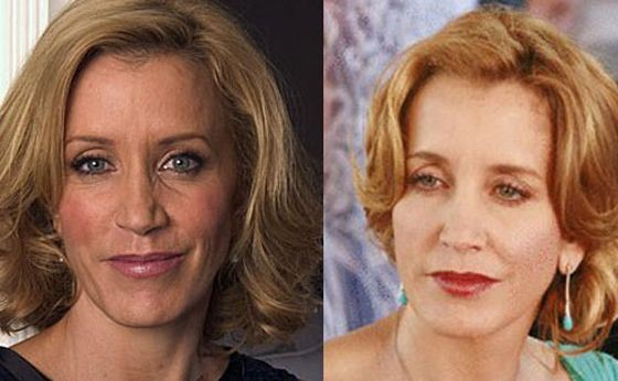 Felicity Huffman before and after plastic surgery