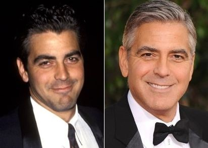 George Clooney before and after plastic surgery