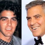 George Clooney before and after plastic surgery (21)