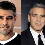George Clooney before and after plastic surgery (22)