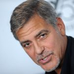 George Clooney plastic surgery (2)