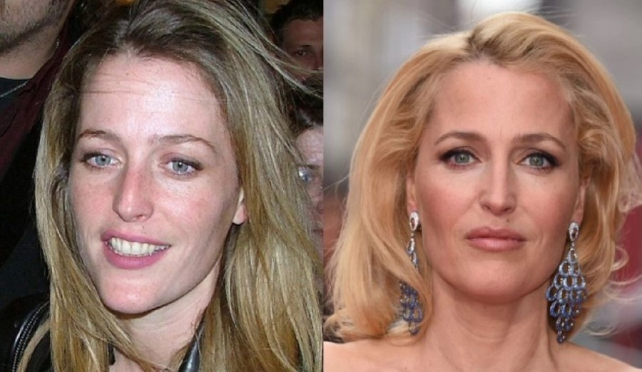 Gillian Anderson before amd after plastic surgery